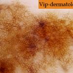 Фотография меланомы кожи