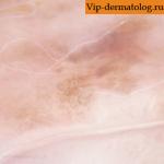 нейрокожный меланоз фото