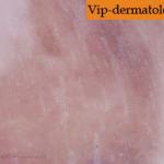 меланоз фото