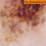 меланоз дюбрея на шее