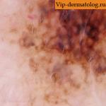 меланоз дюбрея на щеке