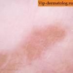 очаговый меланоз фото