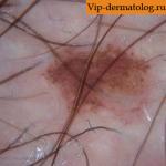 Дерматоз черная линия кожи
