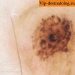 Меланоцитарный невус кожи - вражденный