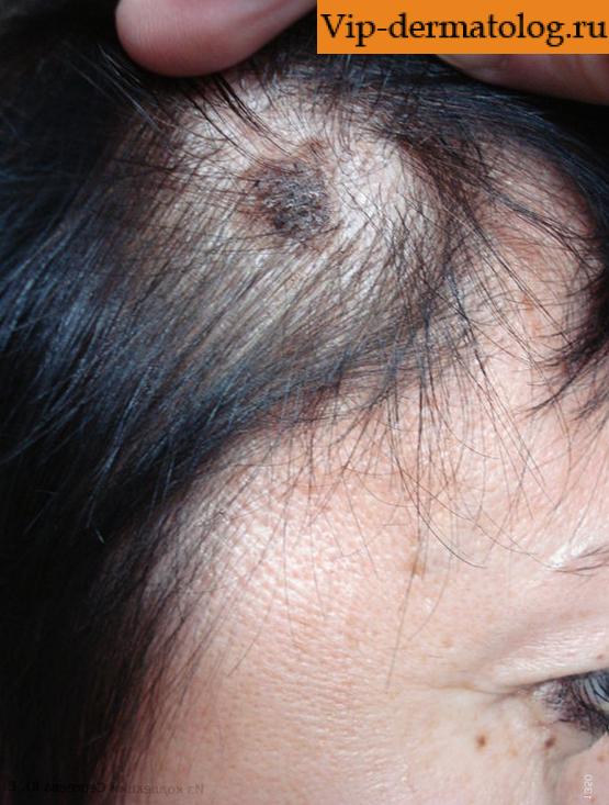 Синдром Бриквита