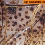 диспластический меланоцитарный невус