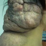 Фотография гигантского пигментного невуса