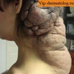 гигантский невус
