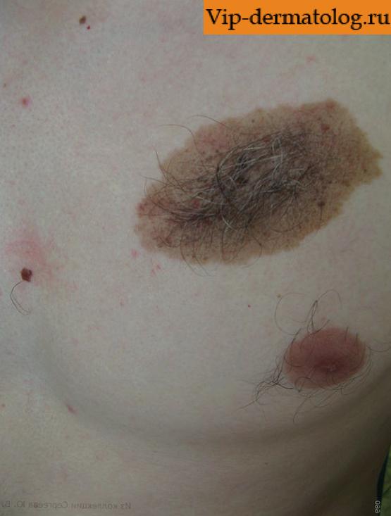 Пигментный невус кожи (фото, удаление, МКБ 10)