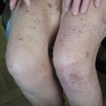 Папулез лимфоматоидный на ногах