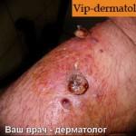 Фотографии пиодермии кожи