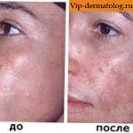 мелазма до и после лечение
