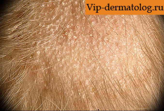 Чем лечить поверхностный грибок на коже