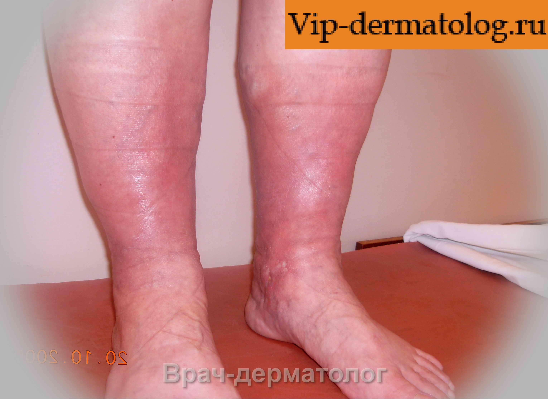 Жжение в ногах лечить в домашних условиях Лечение ног