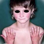 Синдром Ротмунда-Томсона фото