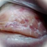 Фотографии бляшечной склеродермии