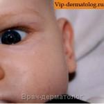 липома глаза у ребенка фото