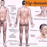 Как лечить болезнь витилиго