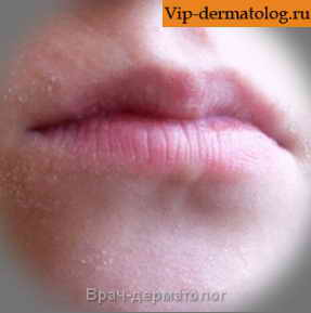 Почему шелушится кожа вокруг губ