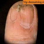 Дисплазия ногтя фото