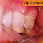 абсцесс зуба фото