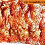 амебиаз кожи фото