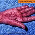 причины амилоидоза