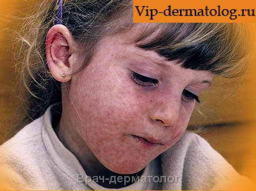 авитаминоз кожи у детей фото