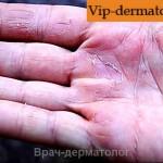 авитаминоз на руках фото