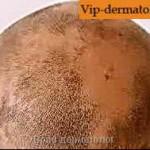 Гнездная алопеция волос