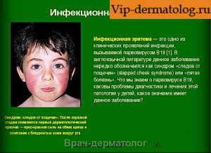 инфекционная эритема лечение
