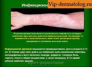 инфекционная эритема симптомы