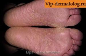 Микоз - грибковое поражение кожи ног