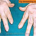 ревматоидный артрит пальцы фото