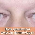 блефарохалазис фото болезни