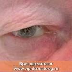 блефарохалазис фото в углу глаза
