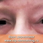 Блефарохалазис фото